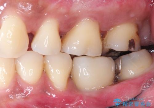 見えない歯周病 長期予後を見据えてインプラントにの治療後