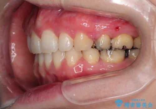 口が閉じずらく、口元出てるのが気になる ワイヤー抜歯矯正による口元の改善の治療後