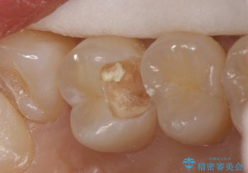 気づかないうちに大きな虫歯が 神経を保存し、セラミックで修復の治療中