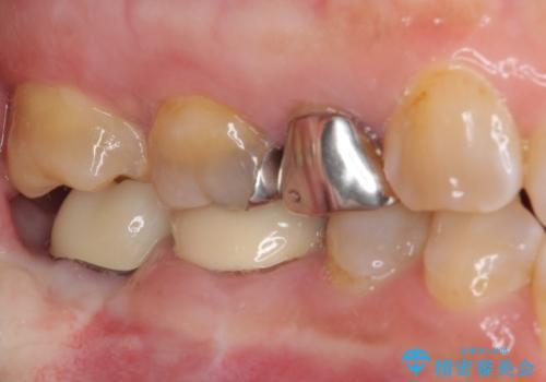 部分矯正を併用した、ストローマンインプラントによる奥歯の咬合回復の治療後