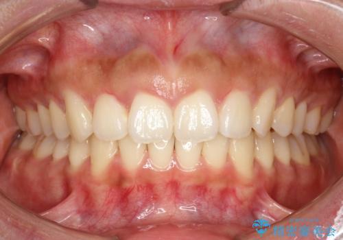 シビアな前突症・過蓋咬合 インビザラインで改善する invisalignの治療後