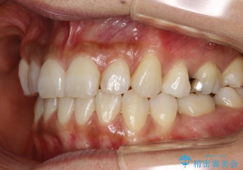 ハーフリンガル抜歯矯正 八重歯を改善するの症例 治療後