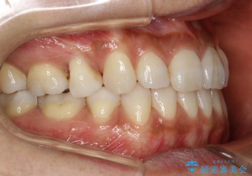 ハーフリンガル抜歯矯正 八重歯を改善するの治療後