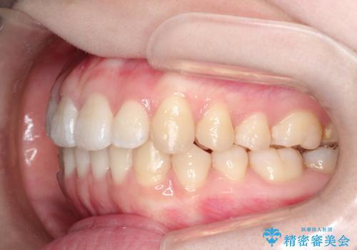 前歯がガタガタ・噛み切りにくい インビザラインによる歯を抜かない矯正の治療後