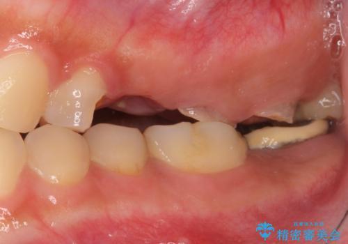 自家歯牙移植 使っていない親知らずを移植 20代女性の治療前