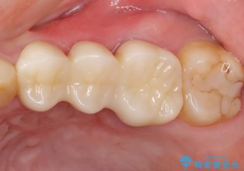 奥歯ブリッジの症例 治療後