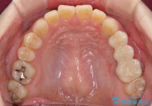 異臭のする歯を抜歯 奥歯のセラミックブリッジ治療の治療後