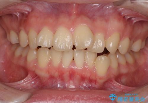 デコボコで飛び出した前歯をきれいに インビザラインによる矯正治療の治療前
