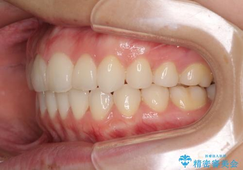 デコボコで飛び出した前歯をきれいに インビザラインによる矯正治療の治療後