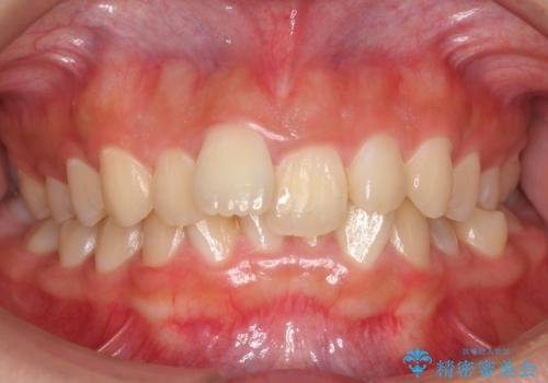 出っ歯をセラミックで治したい の治療前