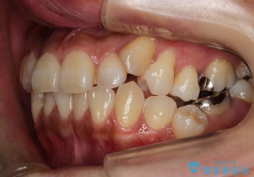 ハーフリンガル抜歯矯正 八重歯を改善するの症例 治療前