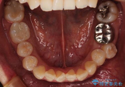 ハーフリンガル抜歯矯正 八重歯を改善するの治療前