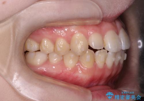 前歯がガタガタ・噛み切りにくい インビザラインによる歯を抜かない矯正の治療中