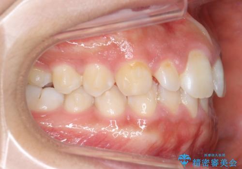 前歯のすきま 矯正治療とセラミックで小さな歯を形良くの治療中