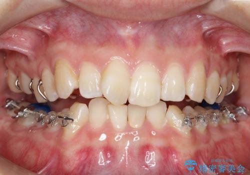 ハーフリンガル ワイヤー矯正による非抜歯・過蓋咬合の治療の治療中