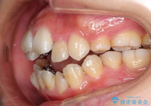 人生が変わる 困難を極める咬合状態に歯列矯正単独で挑戦するの治療中