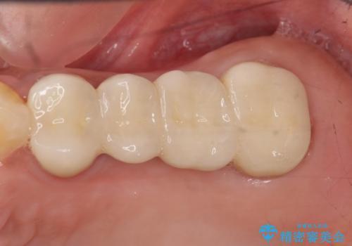 自家歯牙移植の症例 治療後
