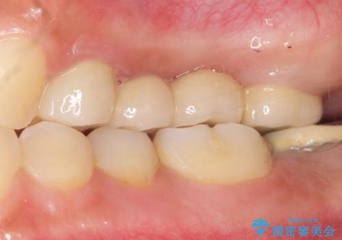自家歯牙移植 使っていない親知らずを移植 20代女性の治療後