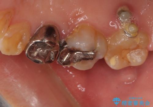 部分矯正を併用した、ストローマンインプラントによる奥歯の咬合回復の治療中