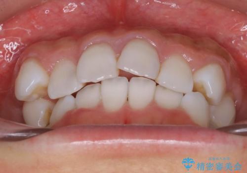 抜歯せずに八重歯のマウスピース矯正の治療前