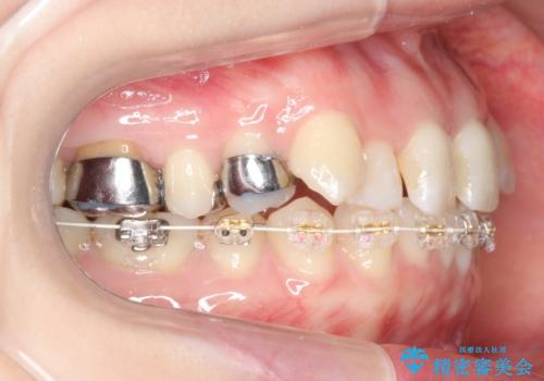 抜かない、削らない矯正 大人も上顎を骨から広げますの治療中