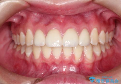 まだらな色の前歯をきれいにしたい セラミック治療による見た目の改善の症例 治療後