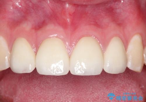 まだらな色の前歯をきれいにしたい セラミック治療による見た目の改善の治療後