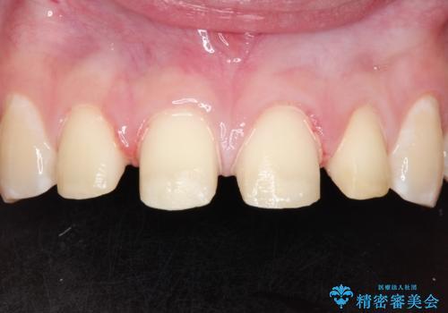 まだらな色の前歯をきれいにしたい セラミック治療による見た目の改善の治療中