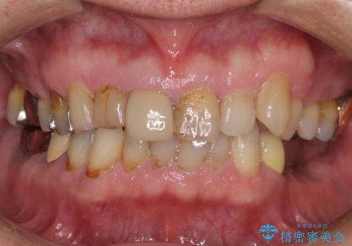 差し歯のやりかえ 上の前歯で印象が明るくの治療前