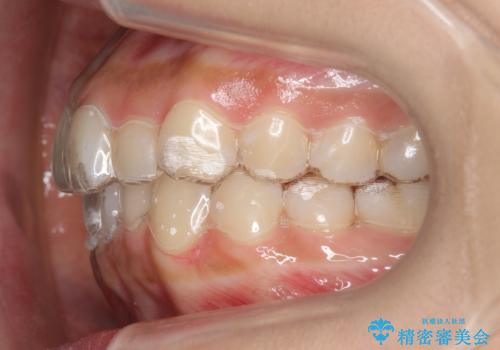 犬歯のねじれ 下の歯のがたがた インビザラインでの治療中