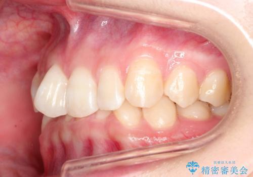 ハーフリンガル ワイヤー矯正による非抜歯・過蓋咬合の治療の治療前