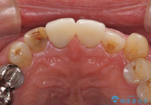 差し歯のやりかえ 上の前歯で印象が明るくの治療後