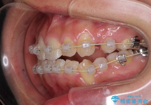 前歯が八重歯でガタガタ ワイヤーによる抜歯矯正の治療中