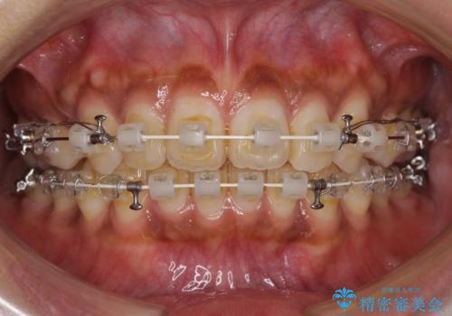 着色した歯肉のピーリング 黒ずみ除去の症例 治療前