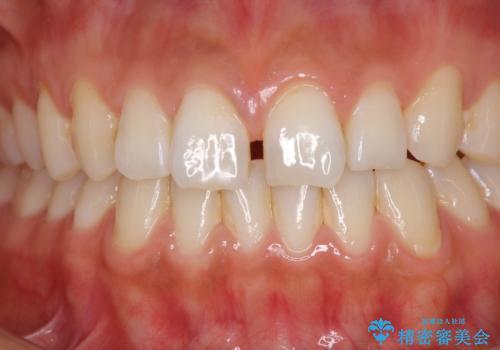 前歯の隙間をオールセラミックで閉じるの治療前