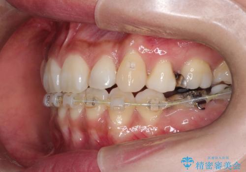 ハーフリンガル抜歯矯正 八重歯を改善するの治療中