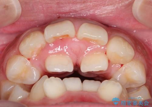 人生が変わる 困難を極める咬合状態に歯列矯正単独で挑戦するの治療前