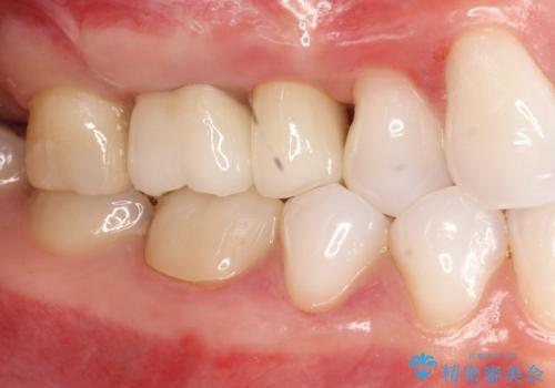 歯周外科・根管治療による長期予後を期待する奥歯の治療の症例 治療後