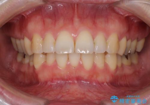 口が閉じずらく、口元出てるのが気になる ワイヤー抜歯矯正による口元の改善の症例 治療前