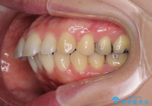 口が閉じずらく、口元出てるのが気になる ワイヤー抜歯矯正による口元の改善の治療前