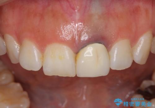 前歯のメタルをセラミックにしたい 歯自体が変色している場合の参考用の治療前