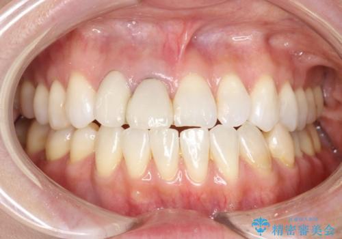 前歯がぐらぐらする 抜歯→ブリッジへ の症例 治療前