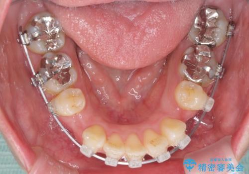 口が閉じずらく、口元出てるのが気になる ワイヤー抜歯矯正による口元の改善の治療中