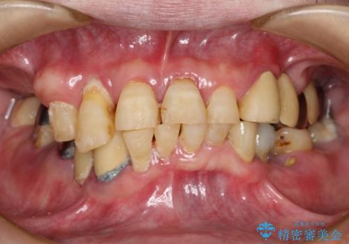 虫歯だらけ、歯周病 崩壊した口腔の再建 フルマウスリコンストラクションの症例 治療前