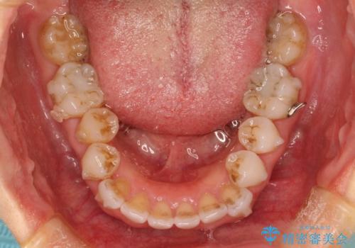 抜歯せずに八重歯のマウスピース矯正の治療中