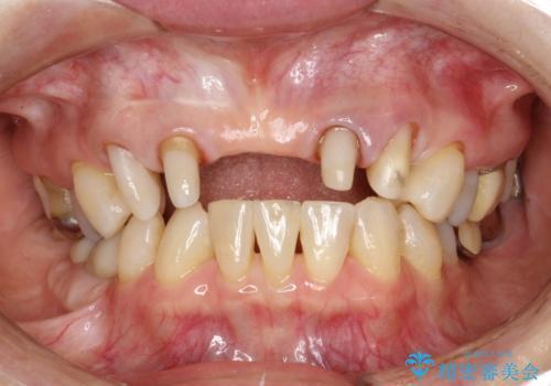 前歯のブリッジの見栄えが悪い→見えないところからしっかりとやり直しをの治療中