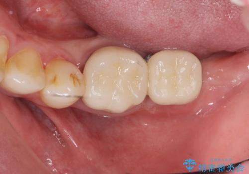 最後方臼歯のインプラント補綴の治療後