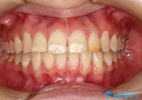 まだらな色の前歯をきれいにしたい セラミック治療による見た目の改善の症例 治療前