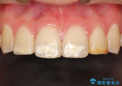 まだらな色の前歯をきれいにしたい セラミック治療による見た目の改善の治療前
