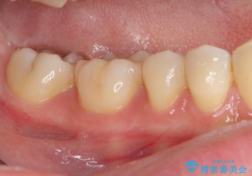 目立つ奥歯の銀歯をセラミックインレーにの治療後